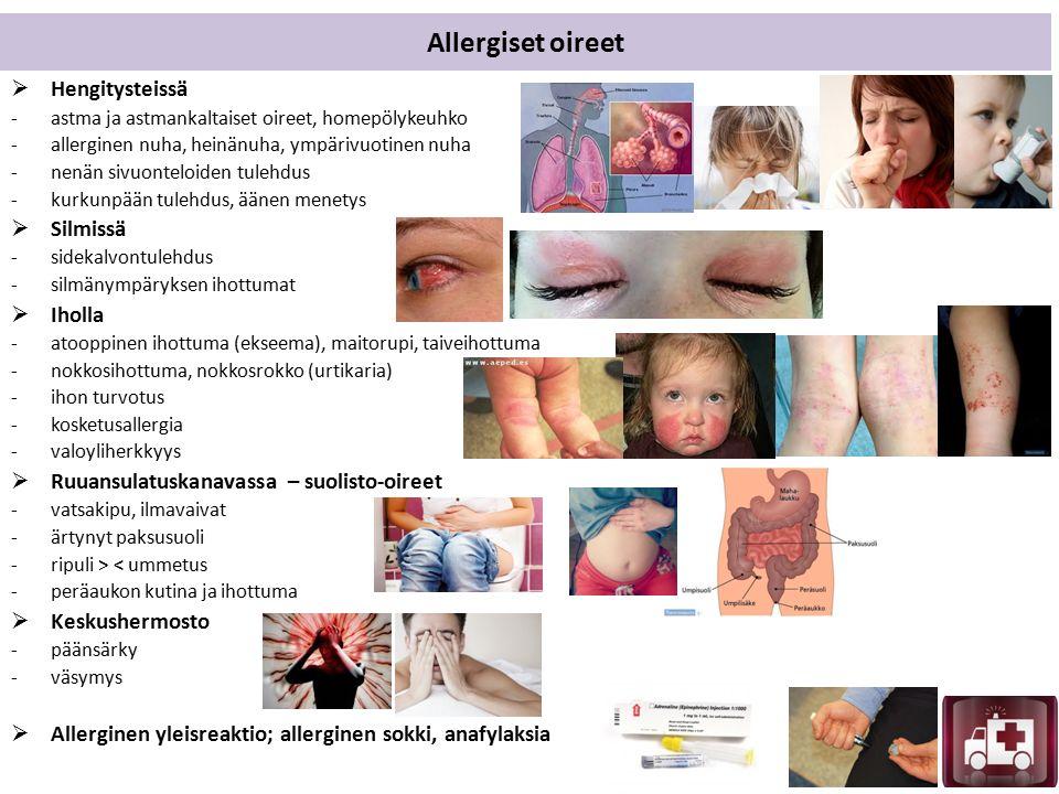 Allergiset oireet  Hengitysteissä -astma ja astmankaltaiset oireet, homepölykeuhko -allerginen nuha, heinänuha, ympärivuotinen nuha -nenän sivuonteloiden tulehdus -kurkunpään tulehdus, äänen menetys  Silmissä -sidekalvontulehdus -silmänympäryksen ihottumat  Iholla -atooppinen ihottuma (ekseema), maitorupi, taiveihottuma -nokkosihottuma, nokkosrokko (urtikaria) -ihon turvotus -kosketusallergia -valoyliherkkyys  Ruuansulatuskanavassa – suolisto-oireet -vatsakipu, ilmavaivat -ärtynyt paksusuoli -ripuli > < ummetus -peräaukon kutina ja ihottuma  Keskushermosto -päänsärky -väsymys  Allerginen yleisreaktio; allerginen sokki, anafylaksia