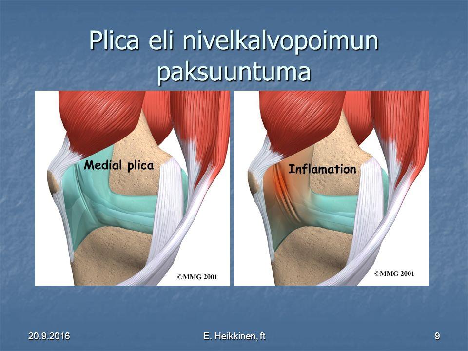 20.9.2016E. Heikkinen, ft9 Plica eli nivelkalvopoimun paksuuntuma