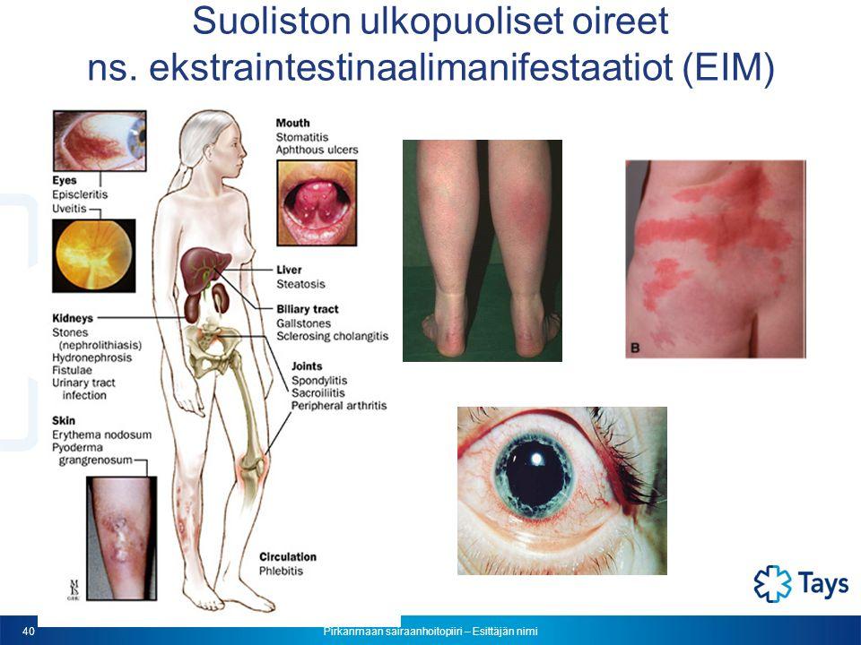 Pirkanmaan sairaanhoitopiiri – Esittäjän nimi 40 Suoliston ulkopuoliset oireet ns.