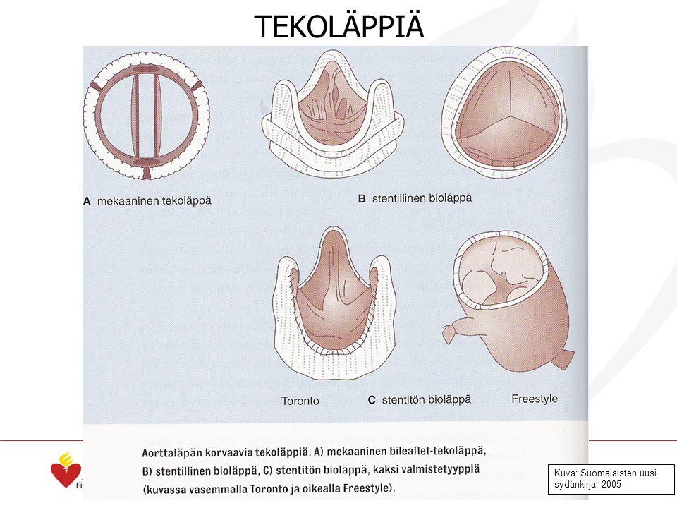 Kuva: Suomalaisten uusi sydänkirja, 2005 TEKOLÄPPIÄ