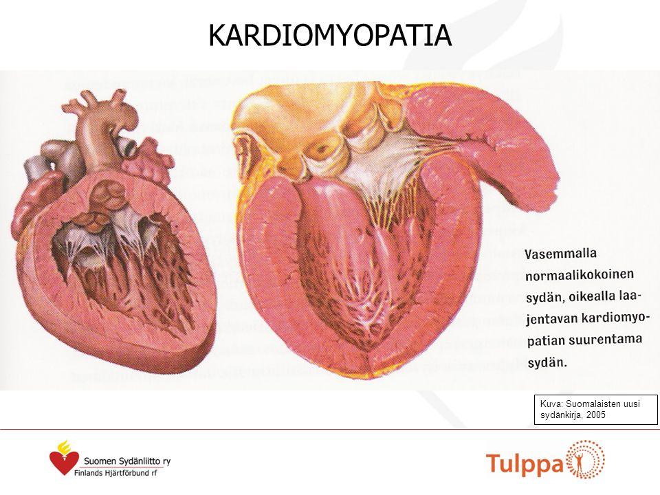 Kuva: Suomalaisten uusi sydänkirja, 2005 KARDIOMYOPATIA