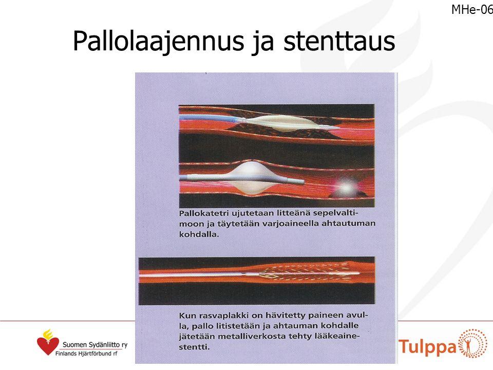 Pallolaajennus ja stenttaus MHe-06