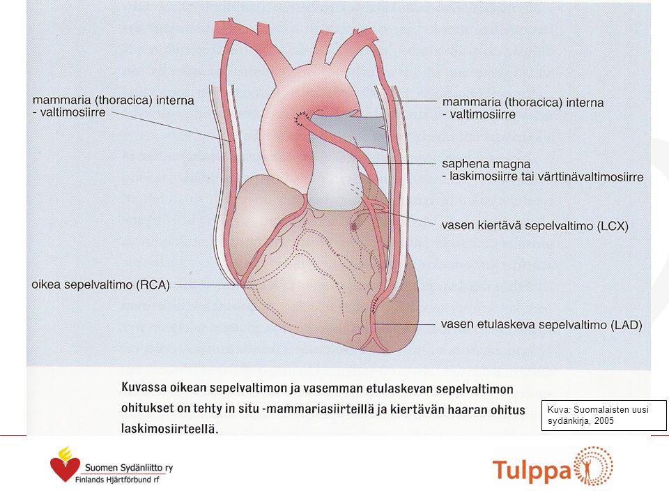Kuva: Suomalaisten uusi sydänkirja, 2005