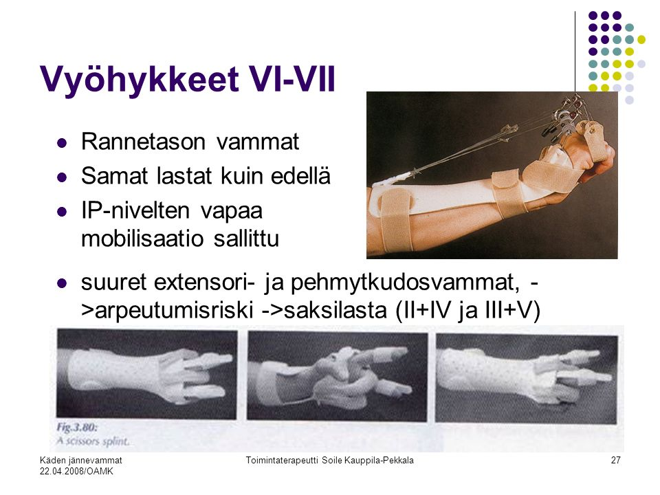 Käden jännevammat 22.04.2008/OAMK Toimintaterapeutti Soile Kauppila-Pekkala27 Vyöhykkeet VI-VII Rannetason vammat Samat lastat kuin edellä IP-nivelten vapaa mobilisaatio sallittu suuret extensori- ja pehmytkudosvammat, - >arpeutumisriski ->saksilasta (II+IV ja III+V)
