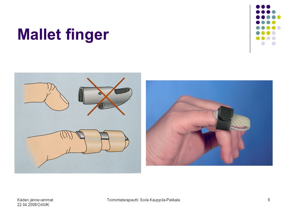 Käden jännevammat 22.04.2008/OAMK Toimintaterapeutti Soile Kauppila-Pekkala8 Mallet finger